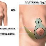Подтяжка груди – верните своему бюсту привлекательность