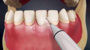 Эффективная чистка зубов ультразвуком